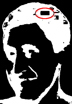 Juri Linkov with microchip in head circled in red